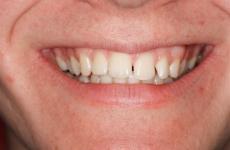 gaps between upper front teeth